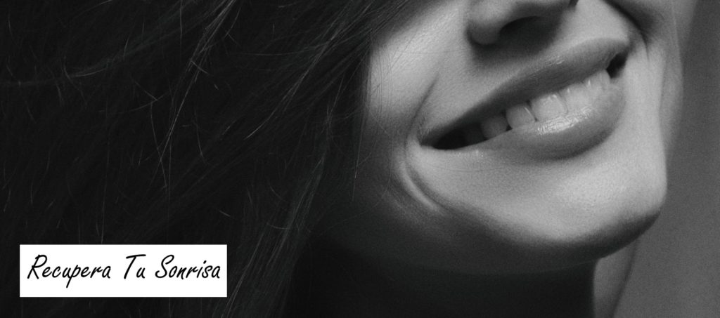 rejuvenecimiento dental tenerife