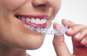 mal posición dental - ortodoncia