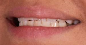 Dientes cortos - Clínica dental Adeje