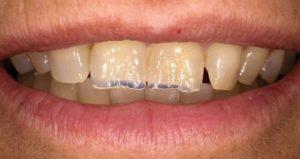 Dientes desgastados - Clínica dental Adeje